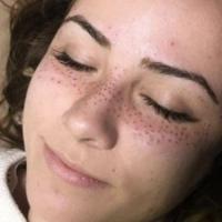 A moda agora é tatuar sardas no rosto?