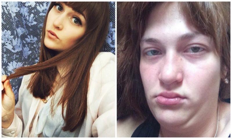 Duas fotos mostram momentos diferentes da mesma pessoa